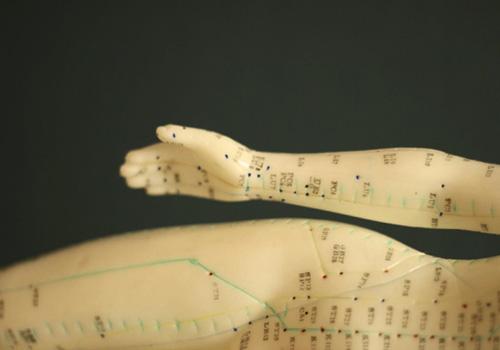 acupuntura2_500x350